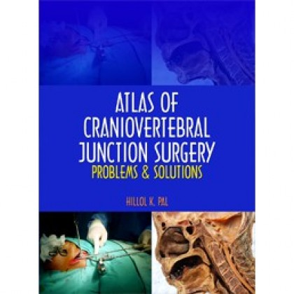 Atlas of Craniovertebral Junction Surgery: Problems & Solutions